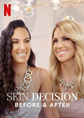 Skin Decision: Before and After S01E03