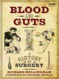 Blood and Guts: A History of Surgery S01E02